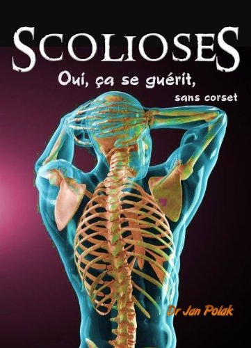 Scolioses : oui, ça se guérit (sans corset)